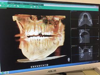 Panoramatický rentgen - Helidentist